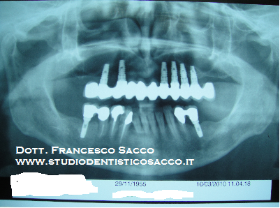 Gnatologo Dr. Francesco Sacco