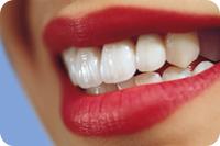 Именно поэтому реставрация передних зубов, которые делают
