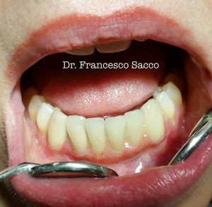 Implantologia Dentale Dr. Francesco Sacco