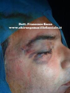 Chirurgia Maxillo Facciale Salerno Dr. Francesco Sacco