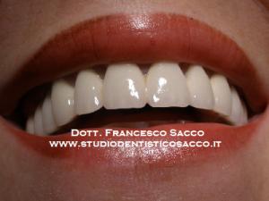 Implantologia Costi Dr. Francesco Sacco