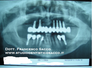Implantologia Sala Consilina DR.SACCO