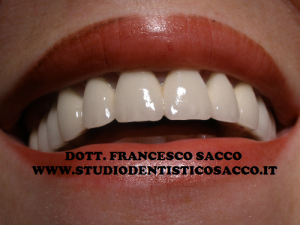 Implantologia Salerno Dott. Francesco Sacco