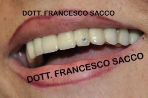Studio Dentistico Sacco Estetica Dentale