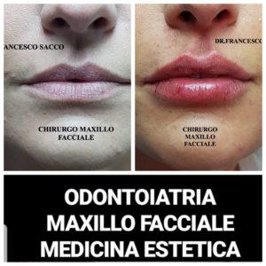 Medicina Estetica NAPOLI Salerno Roma Avellino PROF.FRANCESCO SACCO