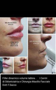 Medicina Estetica Atena Lucana DR.SACCO