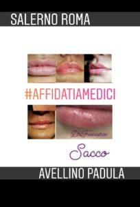 Medicina Estetica Avellino PROF.FRANCESCO SACCO Roma Salerno