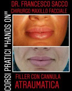 medicina estetica studio dentistico dr. francesco sacco Centri Dentistici Dr.Francesco Sacco Chirurgo Maxillo Facciale Estetica
