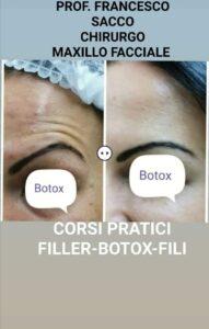 Medicina Estetica Campania - DR.FRANCESCO SACCO botox