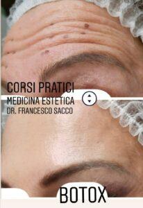 botox dr. francesco sacco